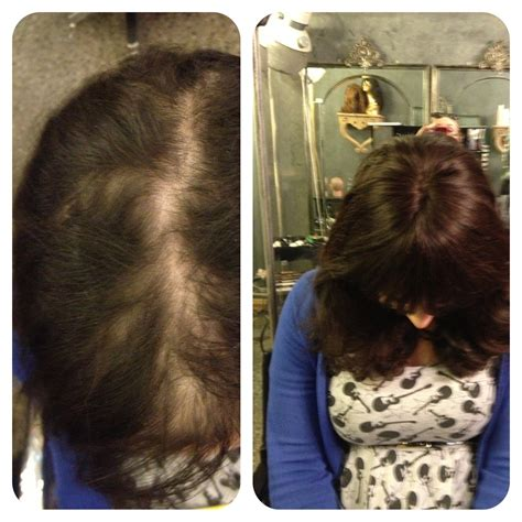 female pattern hair loss pictures female pattern baldness female hair loss treatment melbourne