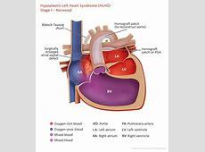 Open heart surgery diagram ccuart Images