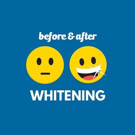 teeth whitening jokes images  pinterest dental