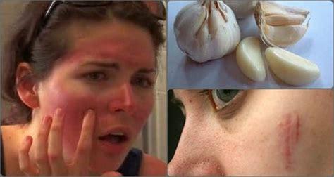 menghilangkan bekas gosong akibat bawang putih