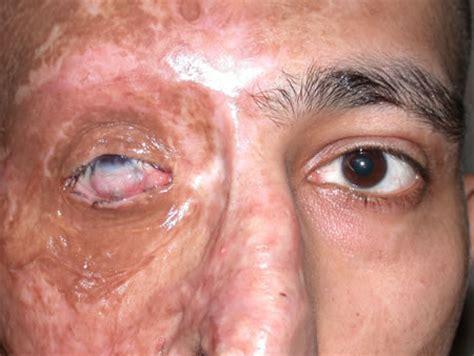 eye injury eye surgery thermal injury