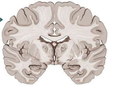 coronal section of human brain imagequiz coronal section of the brain