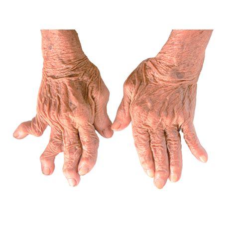 arthritis symptoms symptoms of rheumatoid arthritis net health book