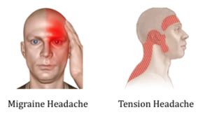 sensitive to light and headaches sensitive to light and headaches treatment