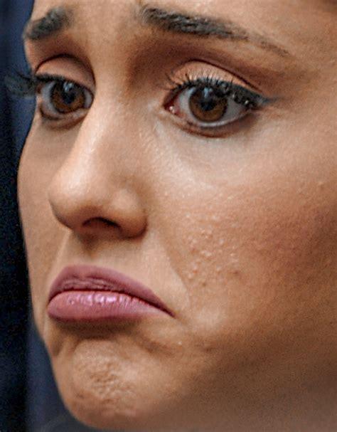 Acne Lamour cbell bow wow rihanna quand l acn 233 leur vole la vedette