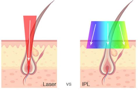diode vs ipl diode vs ipl 28 images pulsed light ipl 101 shining