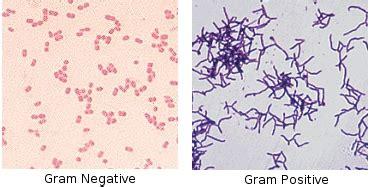 gram positive color sgugenetics copy of escherichia