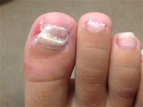nail bed fungus 6 reasons why your toenails turn white new health guide