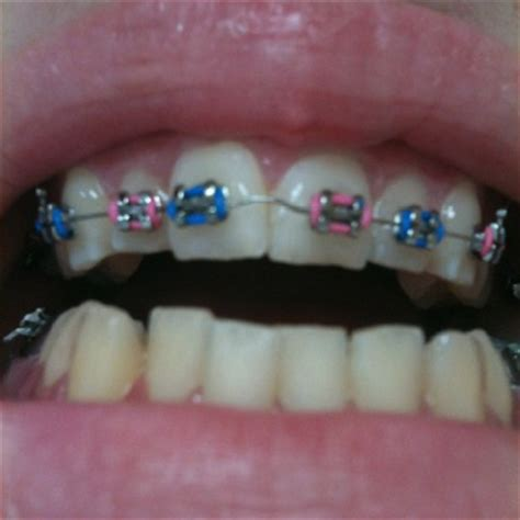 light blue baby pink braces light