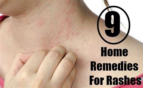 17 best images about home remedies on strep
