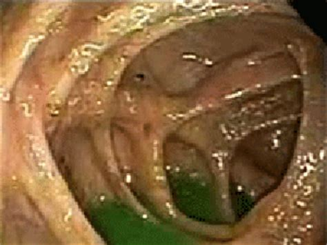 parasitic infection purely earth