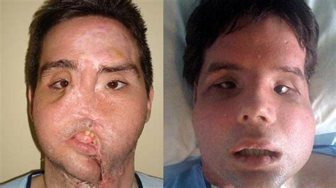 Richard Norris by First Full Face Transplant Patient Appears In Public In Spain