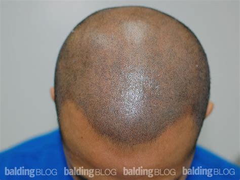 hair pigment loss balding blog pigments archives page 11 of 13 hair