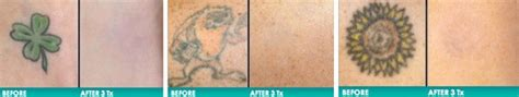 tattoo removal wilmington nc 100 advanced laser removal laser laser