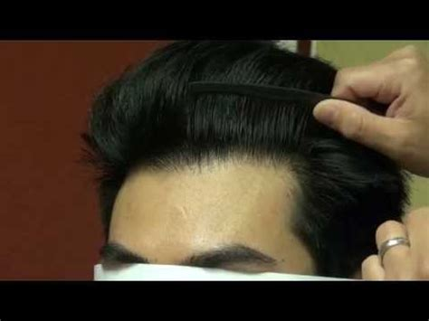 male pattern baldness meaning in tamil receding hairline advancement