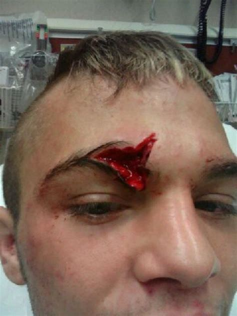 joey diehl s monstrous gash at xfo 41 chicago s mma