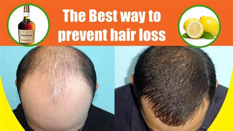 prevent and prolong balding mens health the best mask to prevent hair loss best diet for hair