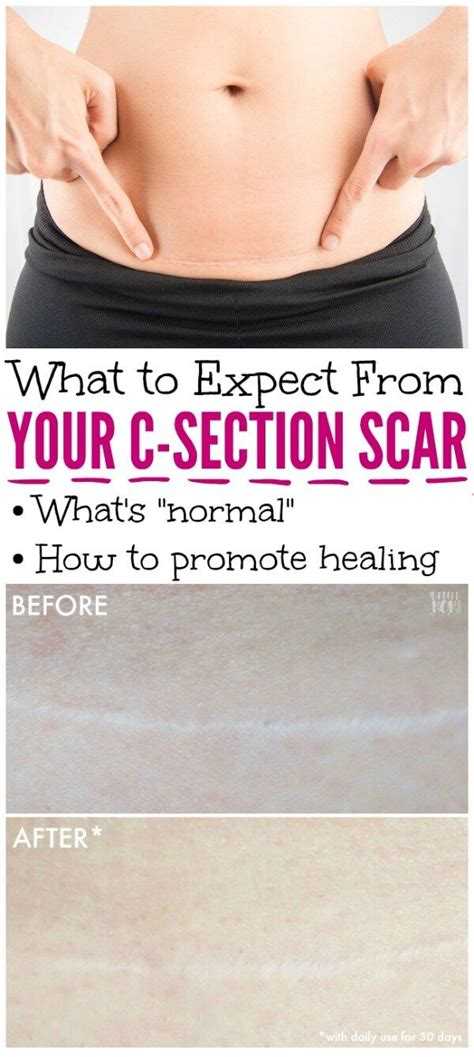 is my c section scar healing right 25 best ideas about c section on pinterest c section