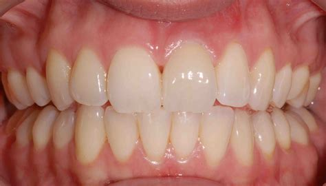 gingivitis treatment gum treatment northtonshire at orchid dental centre and spa book your