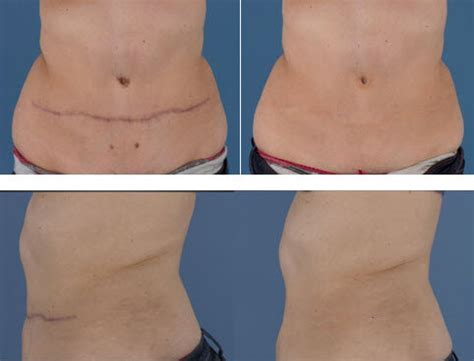 nipple tattoo nhs scar management keeping abreast