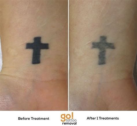 dark black tattoo removal 701 best images about removal in progress on