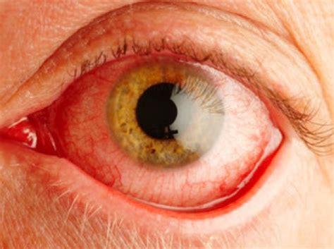 dolore all occhio sinistro e alla testa datapiratebay