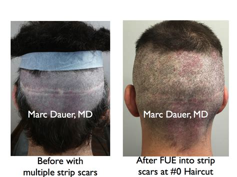 cover scars from hair transplant f u e archives hair transplant los angeles eyebrow