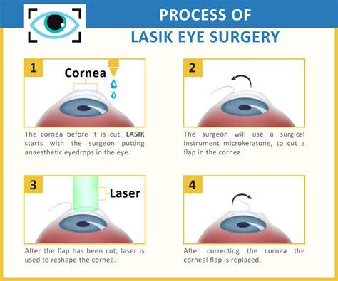 surgery cost lasik surgery cost maximum cialis dosage