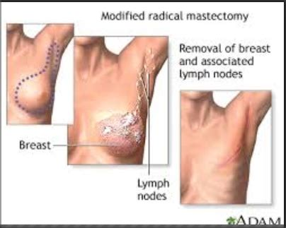 mastectomy and reconstruction not really a good
