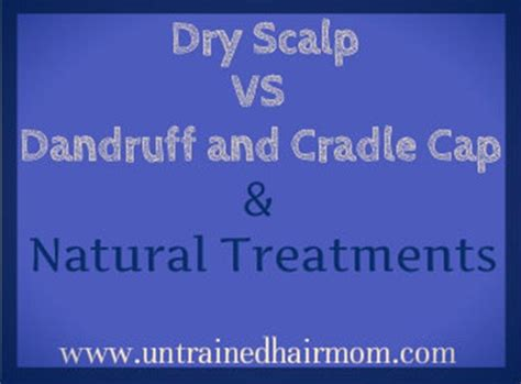 Does Dryer Cause Dandruff scalp vs dandruff or