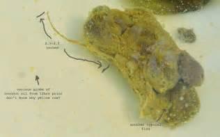 human pinworm stool