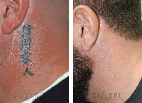 face tattoo removal before and after laser surgery stretch removal eye before and after