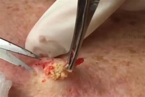 zits and boils popping blackhead zit popping bing images