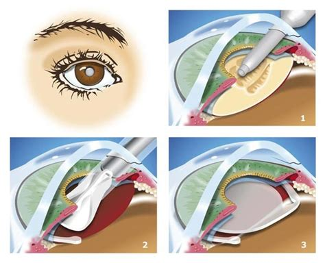 cataract surgery diagram cataracts eye consultants de delaware ophthalmologist