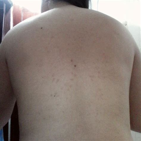 imagenes de manchas blancas en la espalda si tienes mala circulaci 243 n aqu 237 est 225 c 243 mo resolver el