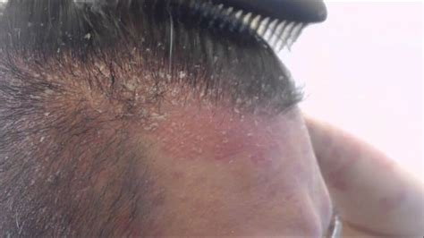 burning scalp scensation with braids best ways to get rid of hair psoriasis follow the remedies