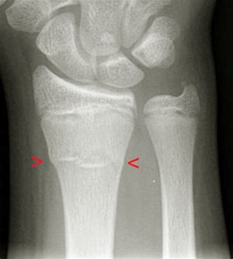 Buckle Fracture - Pictures, Healing time, Treatment ... Fractured Wrist Treatment