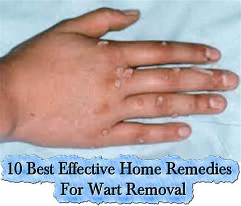10 best effective home remedies for wart removal lil moo