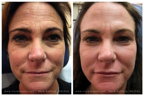 celebrity skin rejuvenation skin rejuevnation services c02 fractional ipl