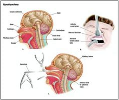 cushings syndrome wikipedia the free encyclopedia 1000 images about nursing endocrine on pinterest
