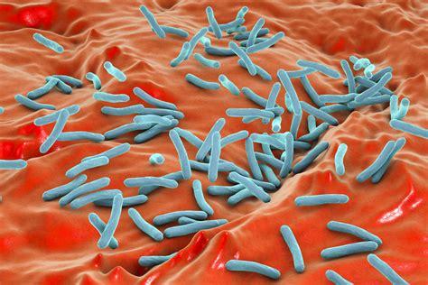 active tuberculosis case confirmed  south carolina high