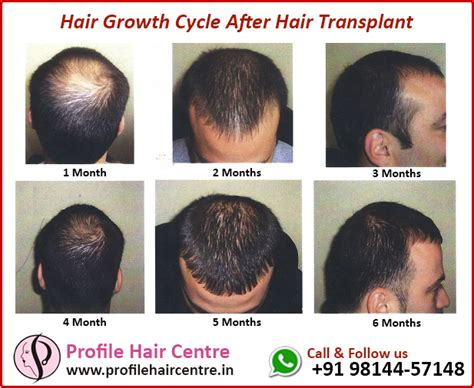hair transplant timeline photos fue recovery timeline photos fue recovery timeline photos