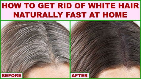 how to get rid of ingrown hair youtube how to get rid of white hair naturally fast at home youtube