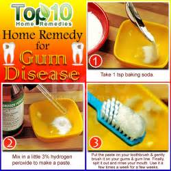 gum pockets home treatment home remedies for gum disease top 10 home remedies