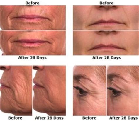 7 Great Anti Ageing Eye Creams by Skincode Essentials Intensive Lifting End 7 2 2019 2 16 Pm