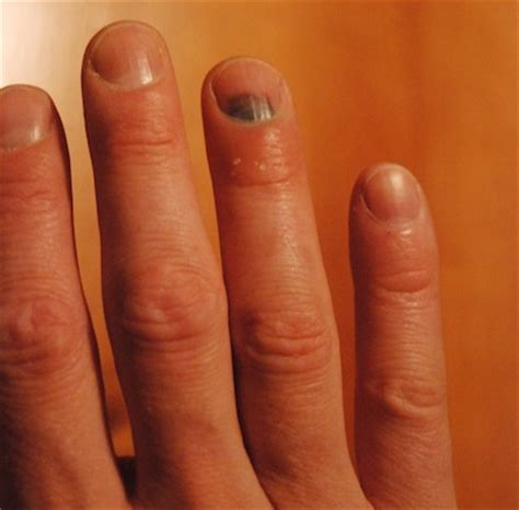 Baby Smashed Finger In Door by Smashed Fingernail Tip Lost Treatment Rachael Edwards
