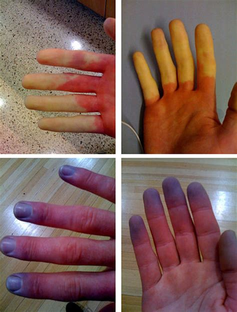 numbness paleness redness or cyanosis in fingertips