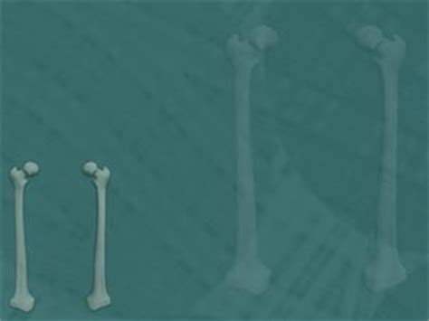 powerpoint templates free bones femur thigh bone 04 medicine powerpoint templates