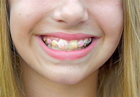 color bands for braces clear braces with color bands make your smile pop erie co
