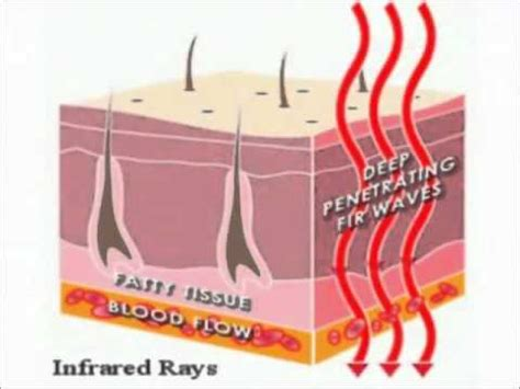 infrared heat l benefits benefit of infrared heat therapy youtube